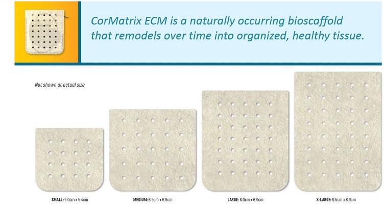 CorMatrix ECM